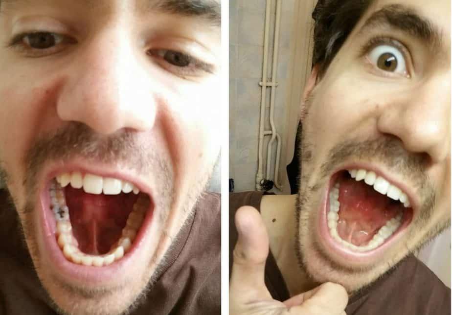 Amalgames dentaires et santé: 13 règles pour retirer ses plombages au mercure en toute sécurité